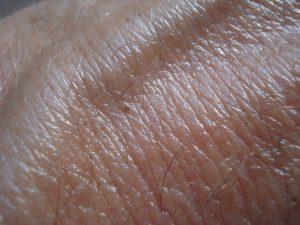 skin-49325_1920